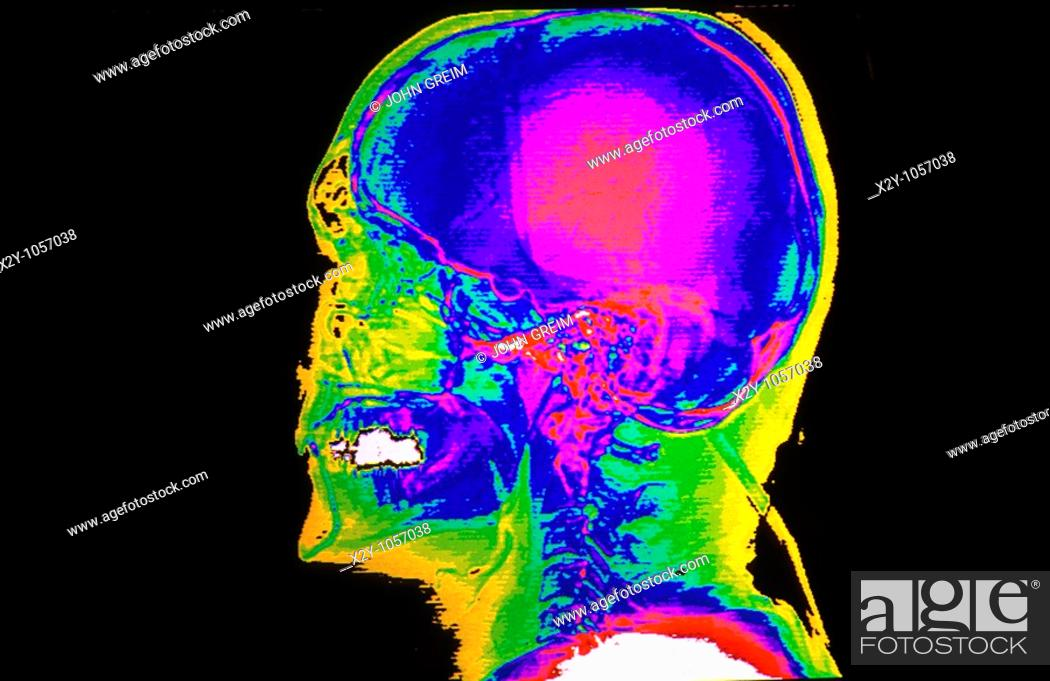 Photo de stock: Color CAT scan of the lateral skull.