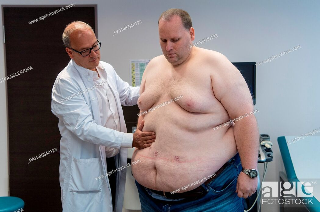 Stock Photo: Four weeks after the surgeons formed a gastric sleeve operation, Markus John (r) being examined by Head Doctor Plamen Staikov during his first post-op.
