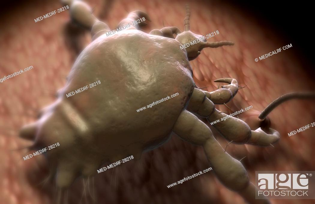 Stock Photo: Pubic louse.