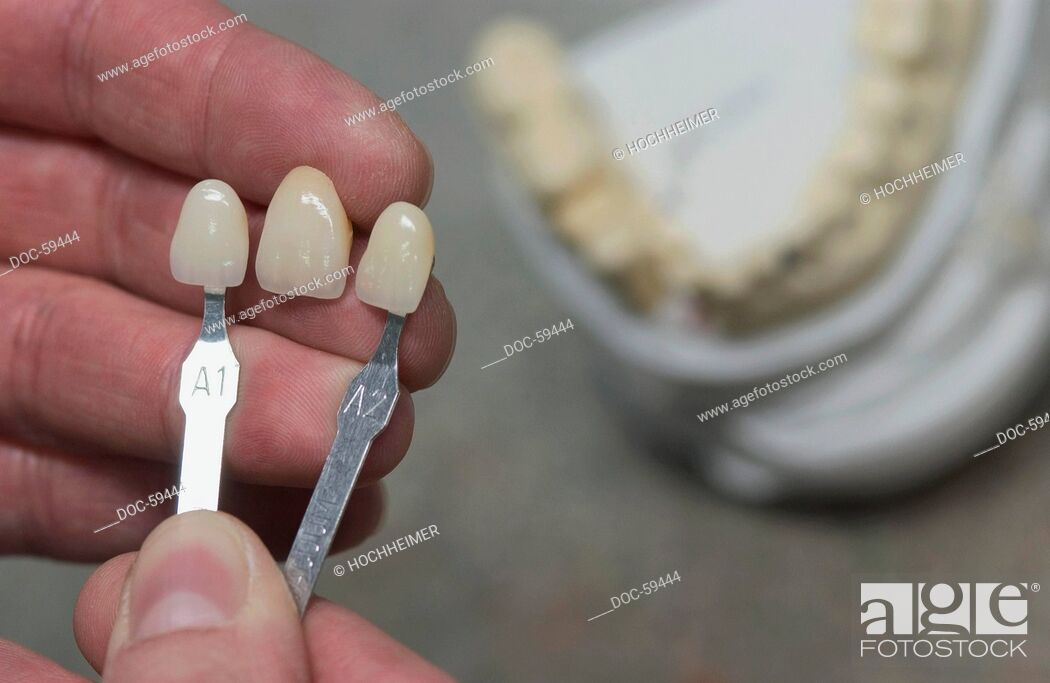 Imagen: close up - dental technician is chooseing the right choice of colour - example - pattern.