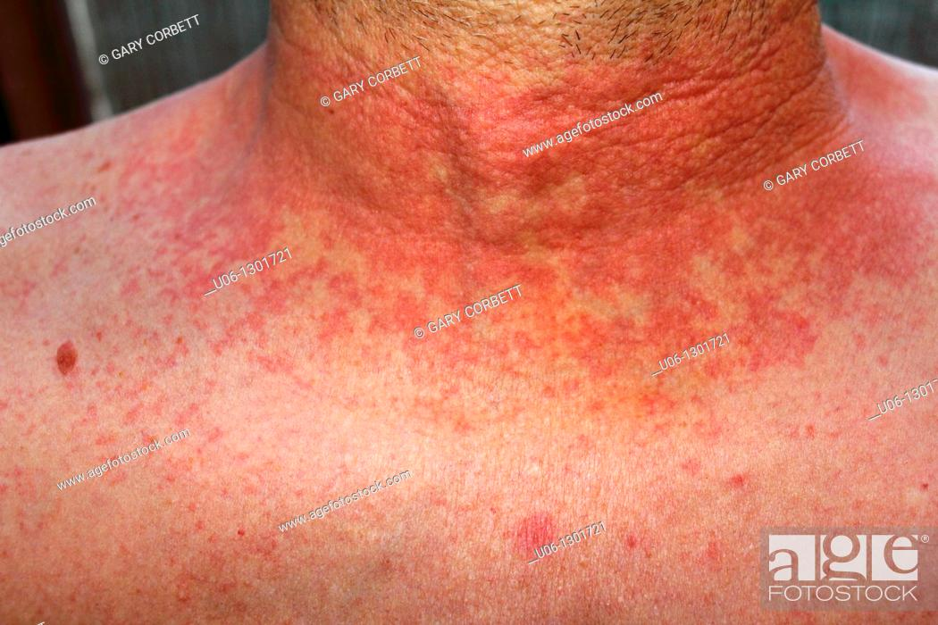 Stock Photo: dermititis should be dermatitisRed skin rash on a man's neck and chest due to scarlet fever, fever, dermatitis or eczema.