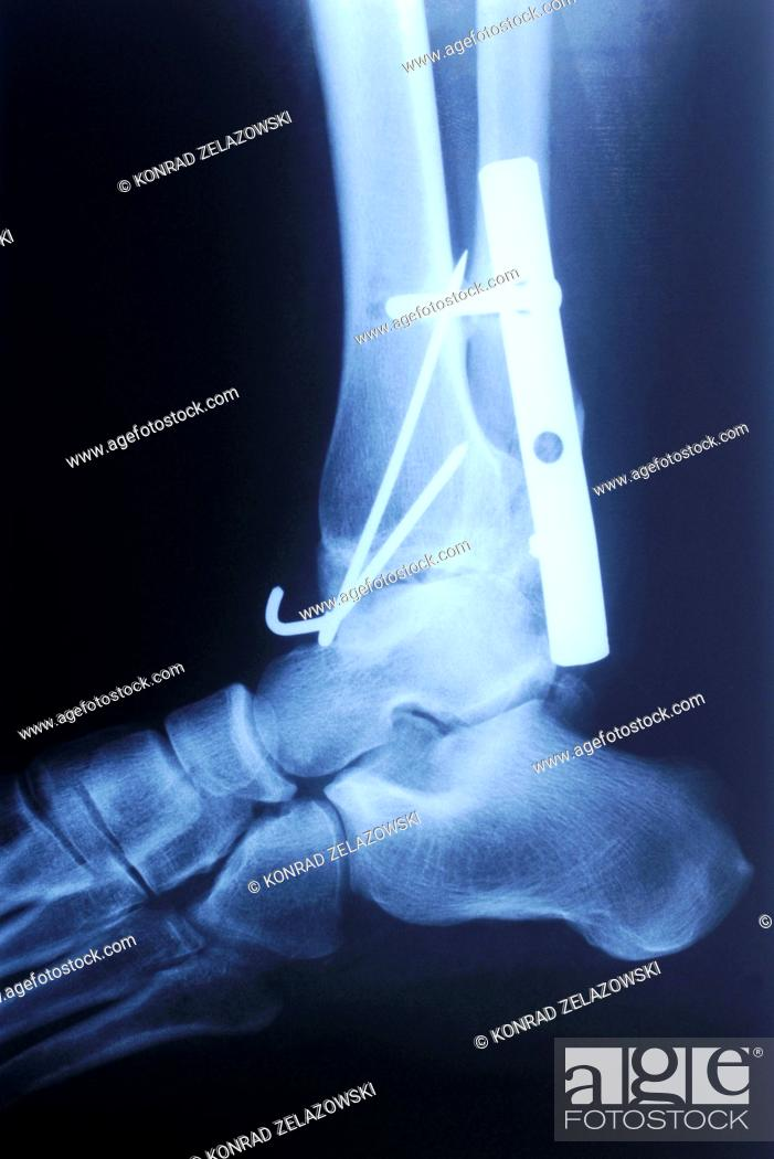 Stock Photo: authentic x-ray picture of human fracture ankle with metal plate and screws.