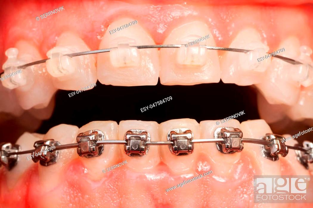 Stock Photo: Close-up picture of opened mouth with ceramic and metal braces.