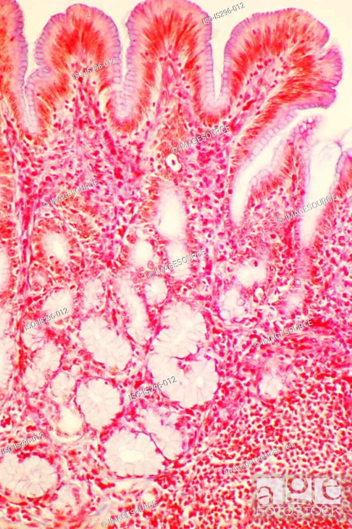 Stock Photo: Pyloric region of stomach.