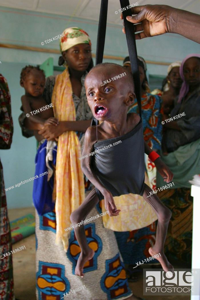 Stock Photo: Children are being weighed to see if they have gained weight in Biu, Northern Nigeria.