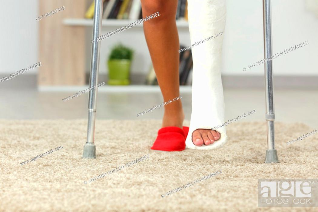 Stock Photo: Front view close up of a disabled woman legs with plaster foot walking at home.