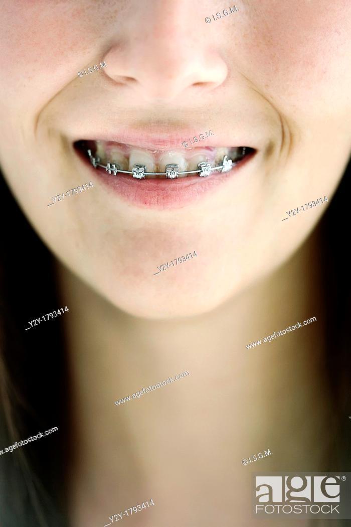 Stock Photo: Girl with irons on teeth.