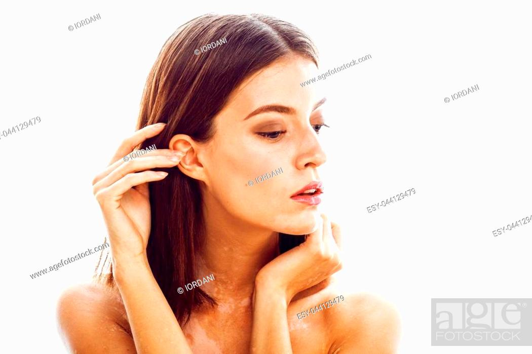 Beautiful Young Brunette Woman With Vitiligo Disease Close Up Isolated On White Positive Smiling Stock Photo Picture And Low Budget Royalty Free Image Pic Esy 044129479 Agefotostock