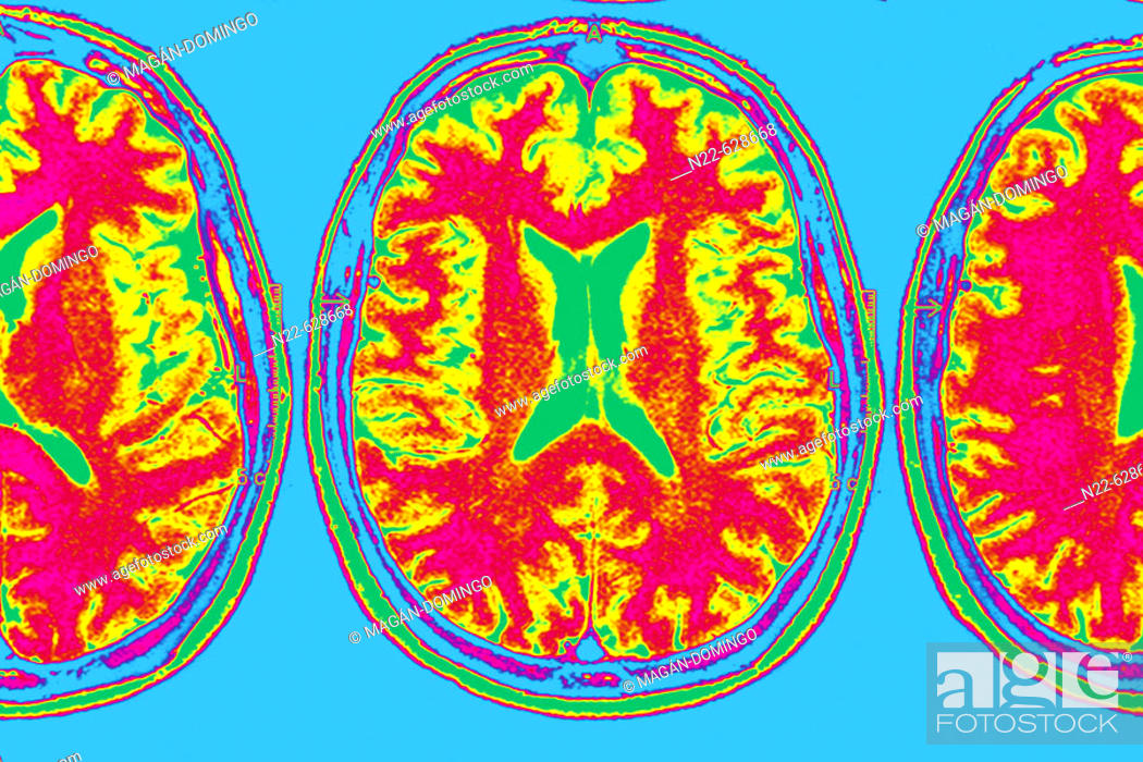 Stock Photo: Axial plane. Magnetic Resonance of the brain.