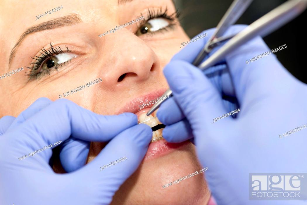 Stock Photo: Orthodontist tightening braces.