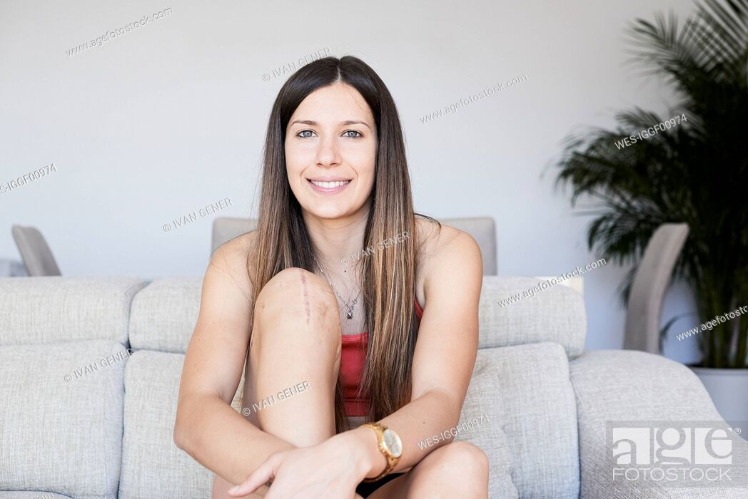 Stock Photo: Portrait of smiling sporty young woman with knee full of scars.