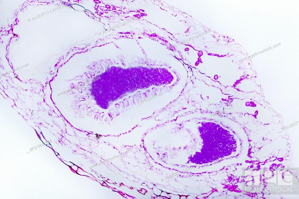 Stock Photo: Hydra, c. s. under Optical Microscope.