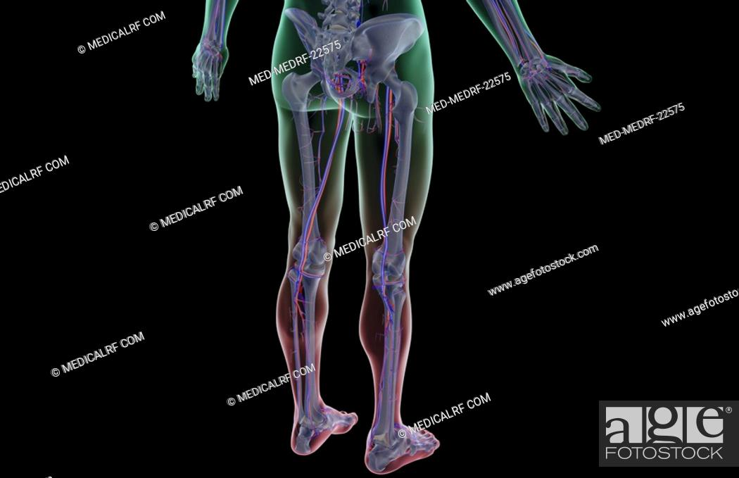 Stock Photo: The blood supply of the lower body.