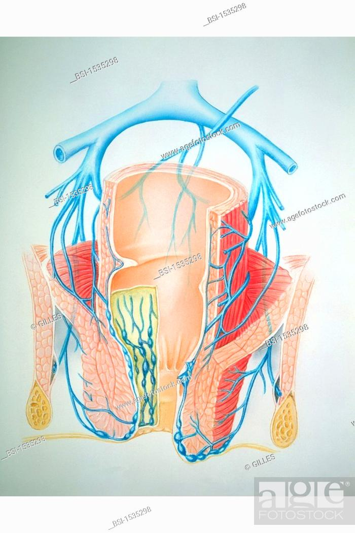 Hemorrhoid Illustrationbrvenous Network In Anus With Hemorrhoids