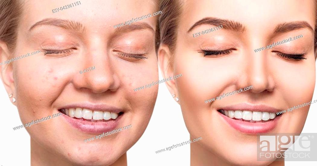 Imagen: Young woman before and after skin treatment and make-up. Over white background.