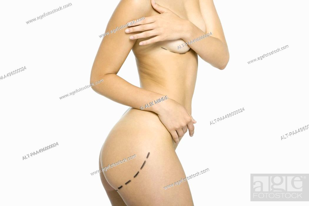 Stock Photo: Nude woman with plastic surgery markings on body, covering breasts, cropped view.