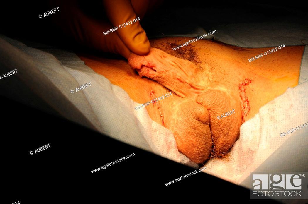 Phalloplasty vs clitoris