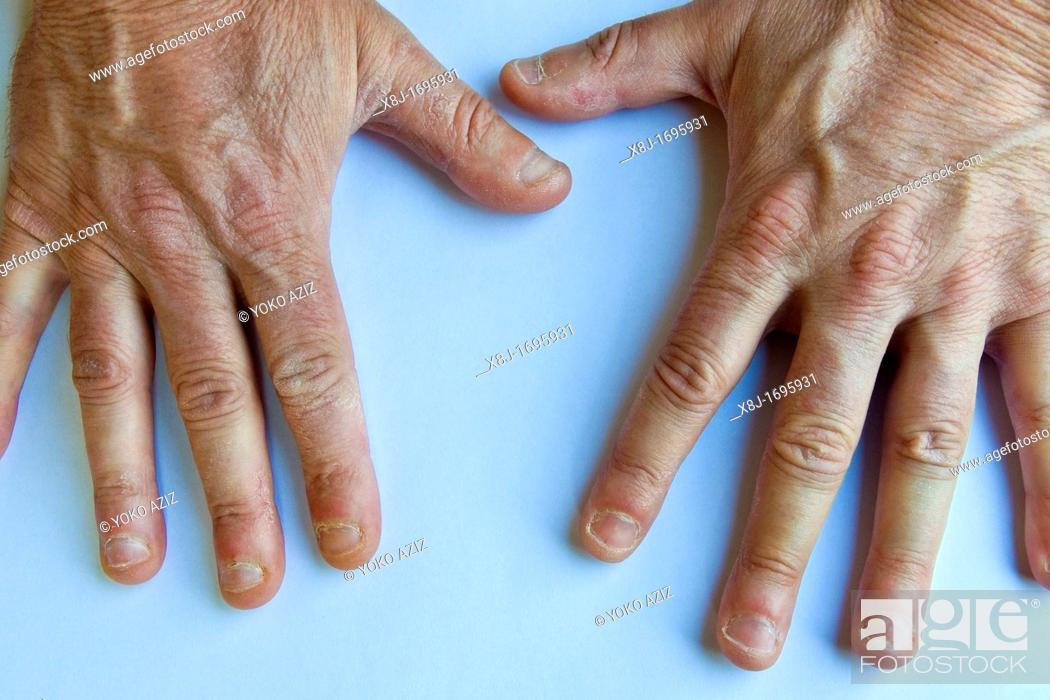 Stock Photo: Hands with bitten nails.