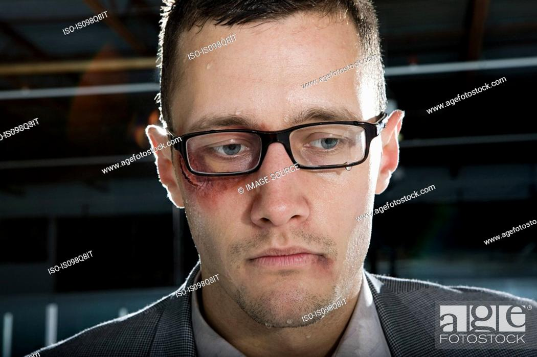 Stock Photo: Businessman with a bruised eye.