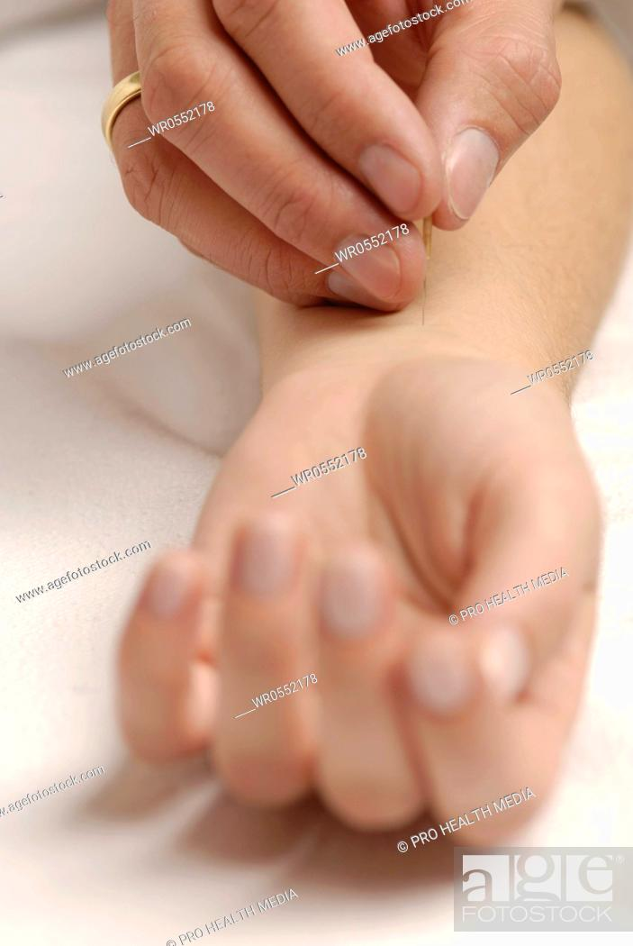 Imagen: Acupuncture on the crook of the arm.