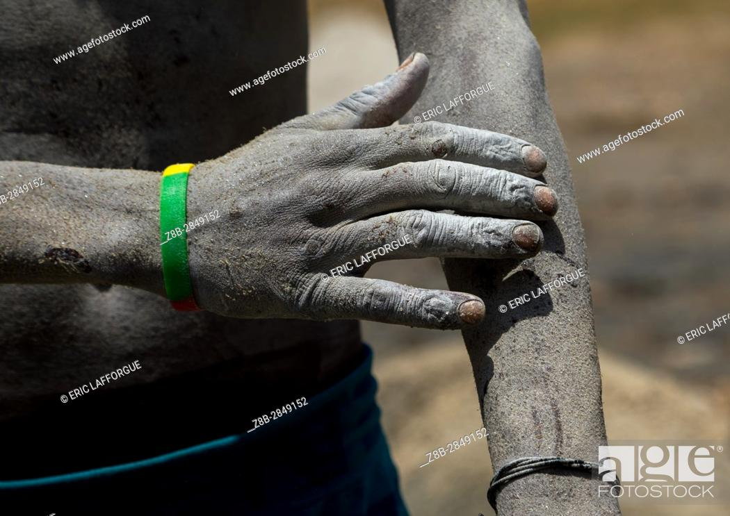Stock Photo: Borana tribe man arms wounded after diving in the volcano crater to collect salt, Oromia, El Sod, Ethiopia.