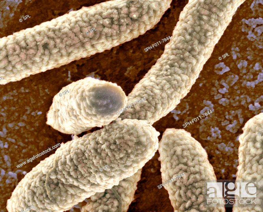 Stock Photo: Coloured scanning electron micrograph (SEM) of Escherichia coli bacteria. Magnification: x27,800 when printed at 10 centimetres wide.