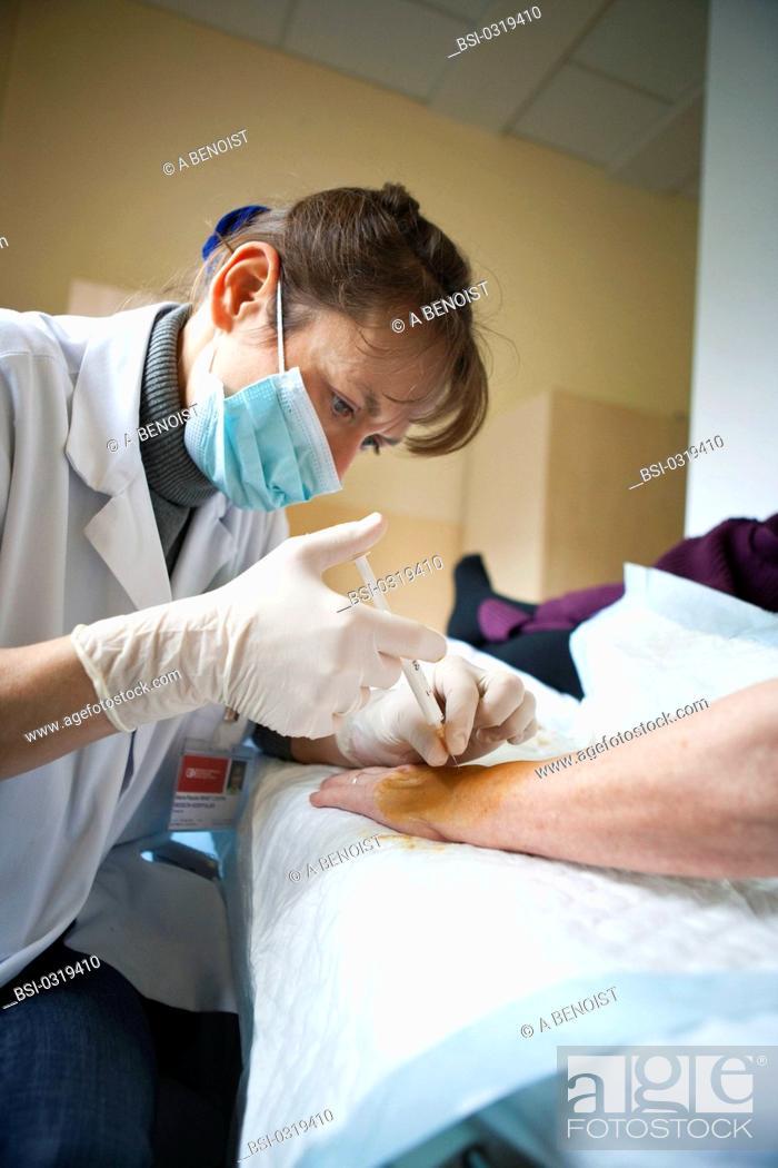 Tratamentul osteocondrozei cervicale la forumul femeilor