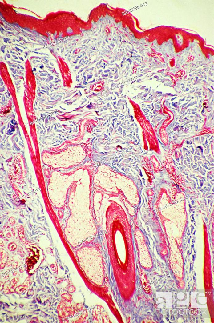 Stock Photo: Hair follicle in skin.