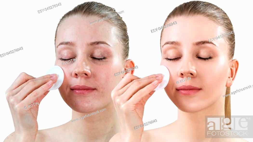 Imagen: Young woman using cotton disk. Before and after treatment skin and retouch. Skincare concept. Isolated on white.