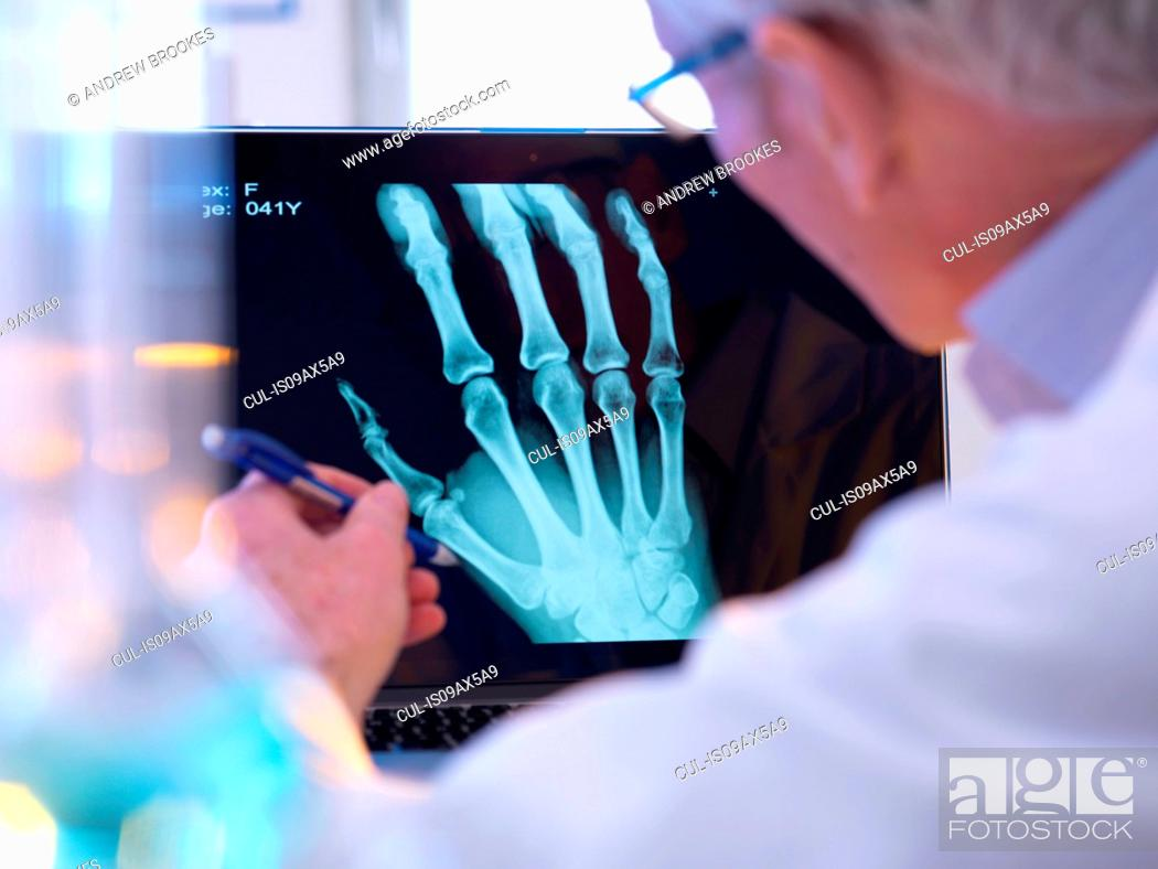 Stock Photo: Radiographer looking at x-ray of hand fracture.
