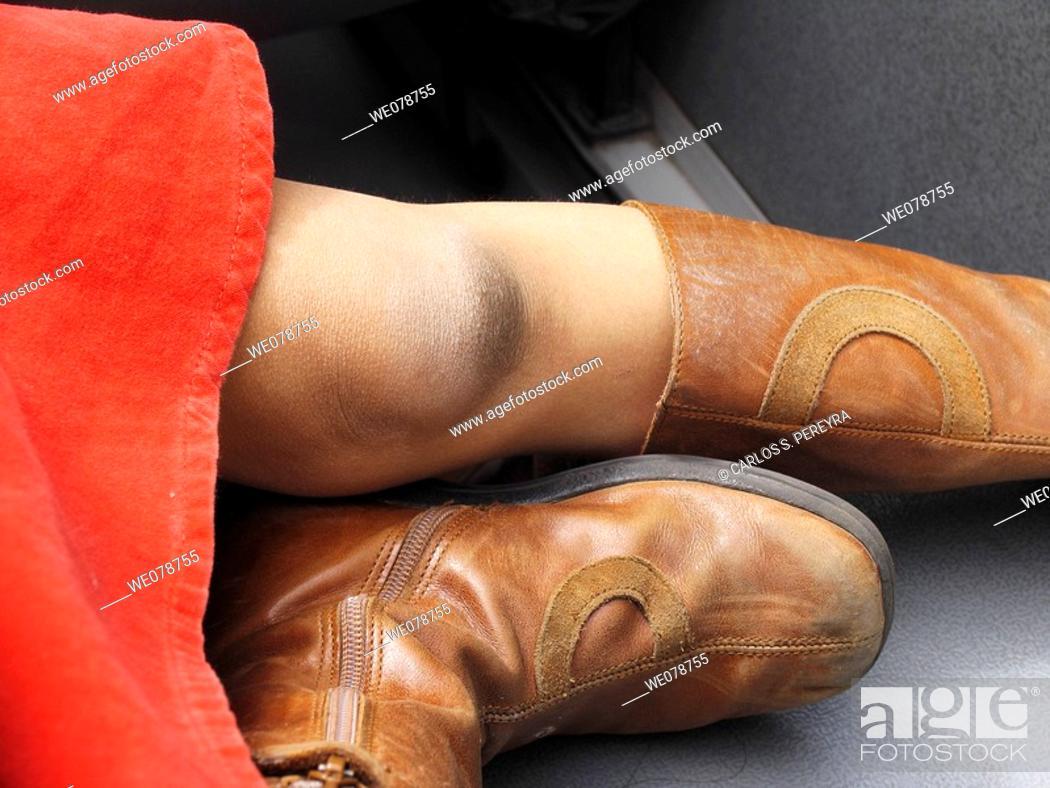 Stock Photo: Girl's knee.