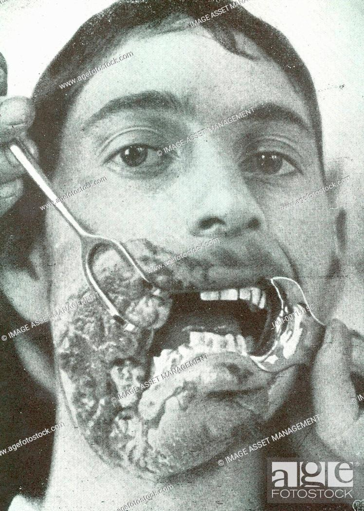 Horror of war: Facial injuries to German soldier in World