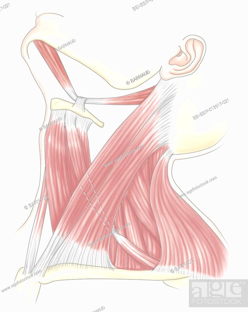 Lateral Side View Of Anterolateral Neck Muscles Stock Photo