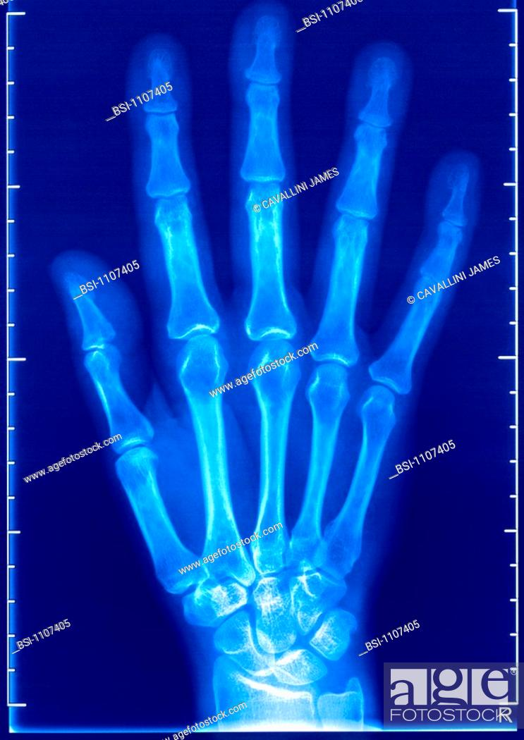 Hand X Raybrx Ray Of A Healthy Right Hand Dorsal View Stock