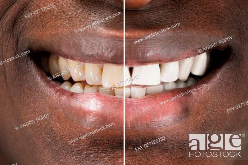 Stock Photo: Close-up Detail Of Smiling Man Teeth Before And After Whitening.