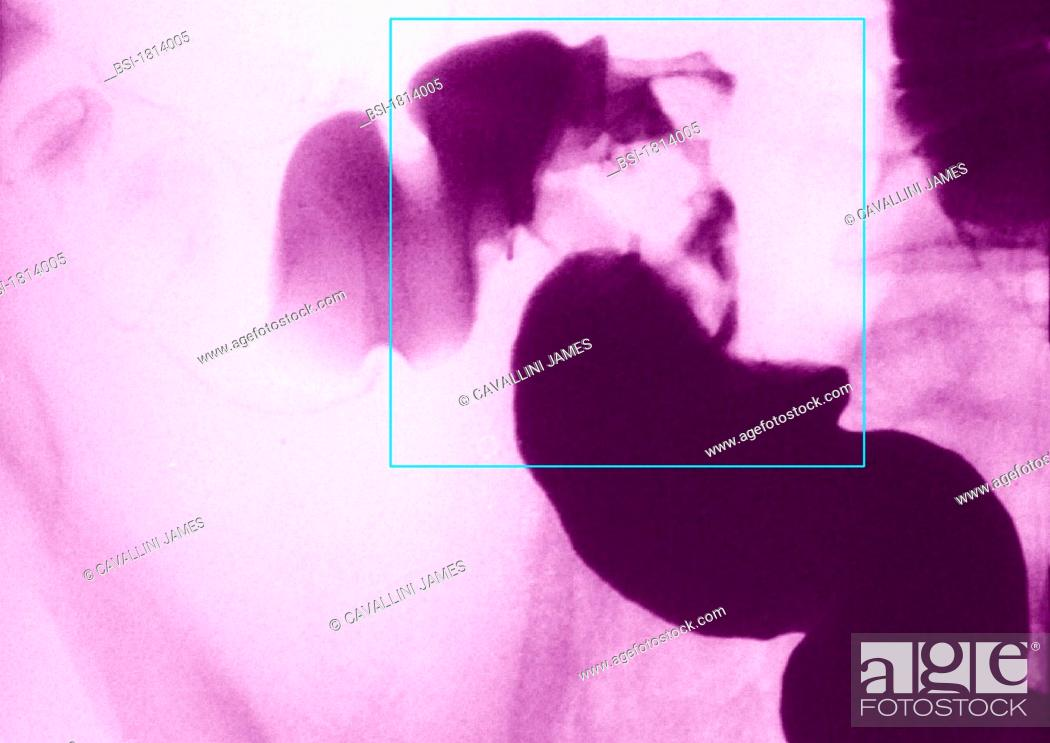 Sigmoid colon cancer - frontal abdominal x-ray, Stock Photo
