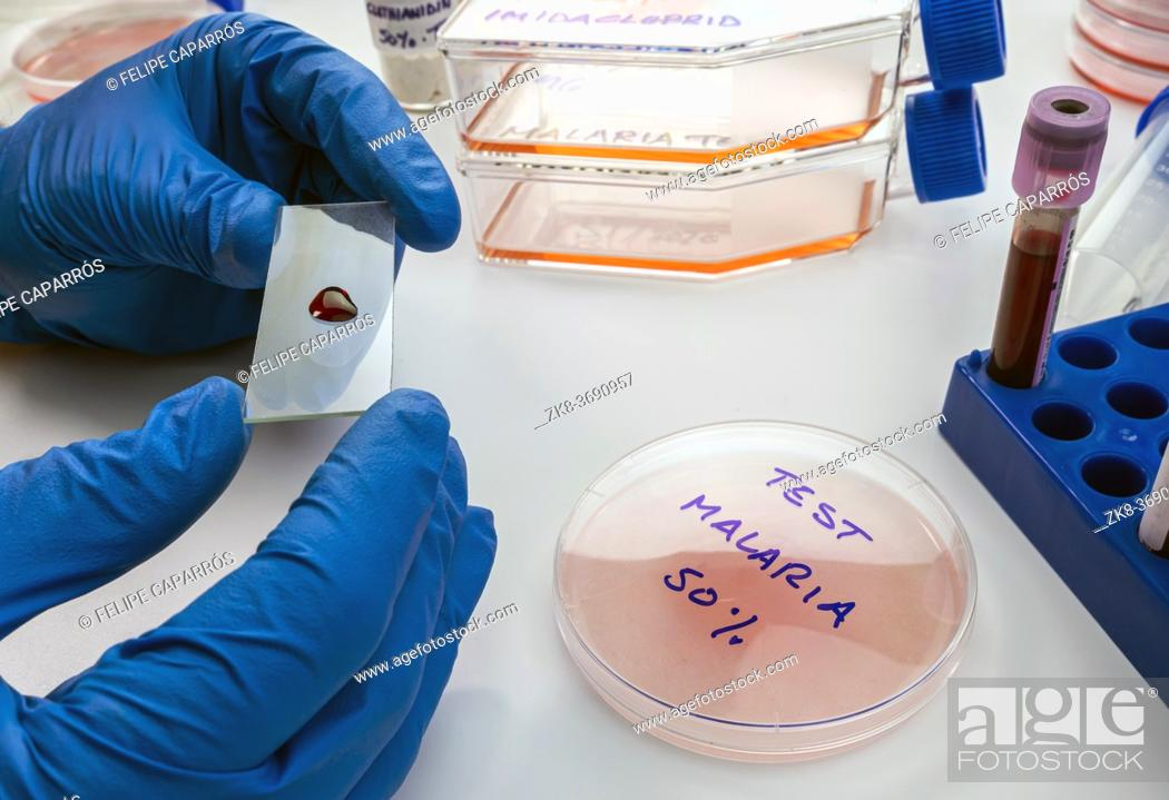 Imagen: Scientist examines blood sample from sick person with malaria in laboratory, conceptual image.