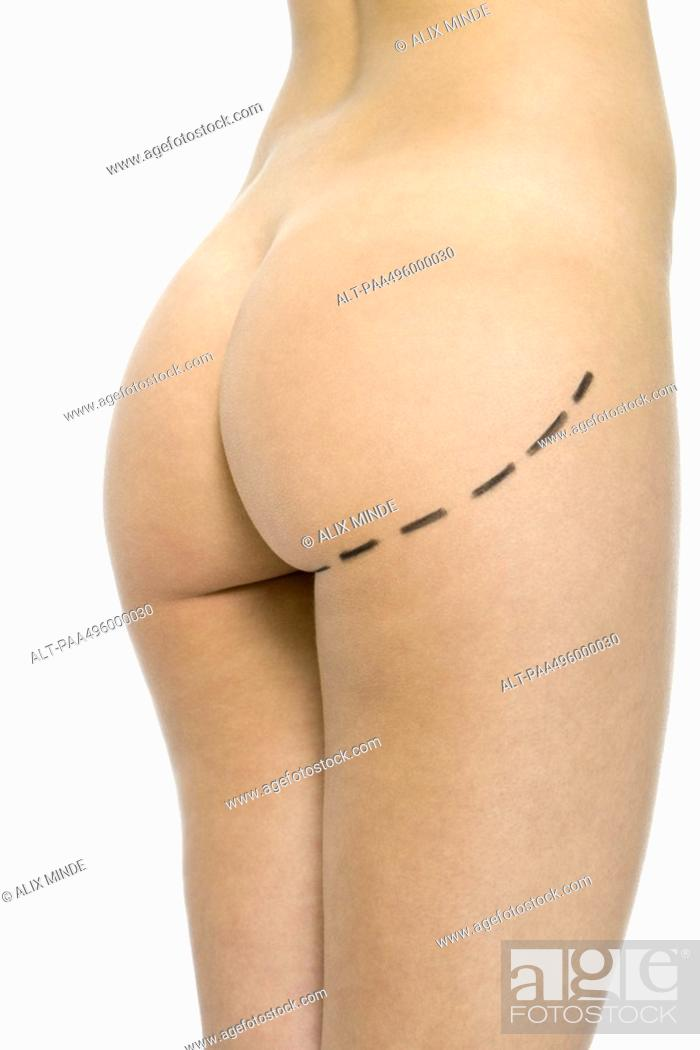 Stock Photo: Nude woman with plastic surgery markings on buttocks, cropped view.