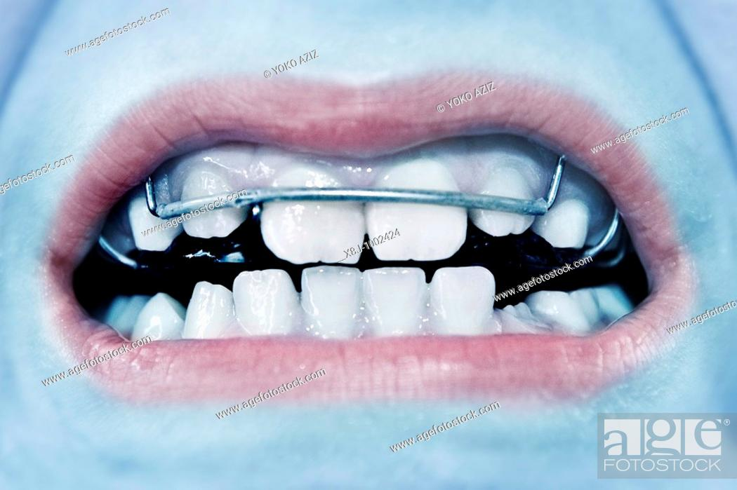 Stock Photo: Orthodontics for children.