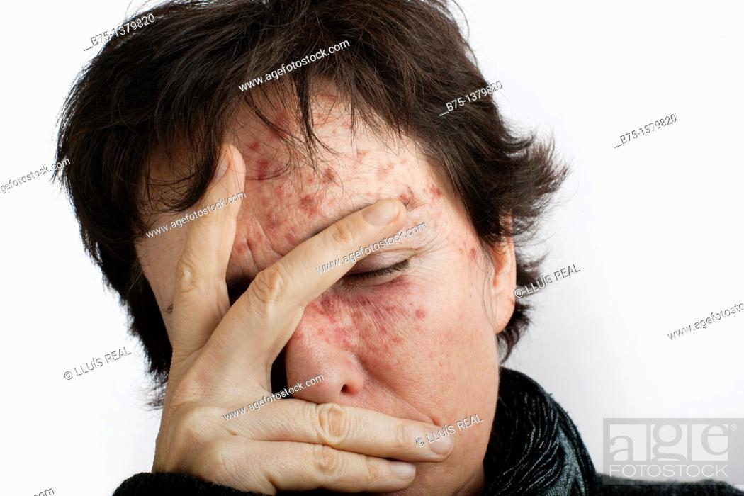 Stock Photo: Portrait of woman with skin spots.