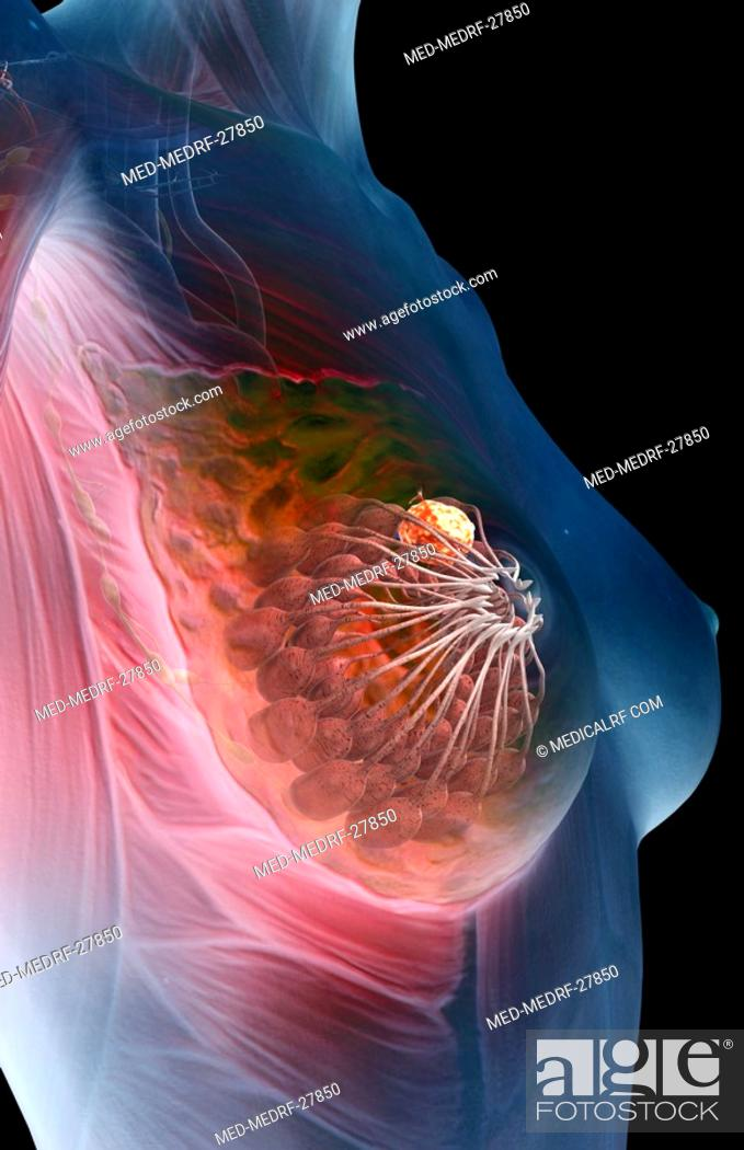 Stock Photo: Breast cancer.