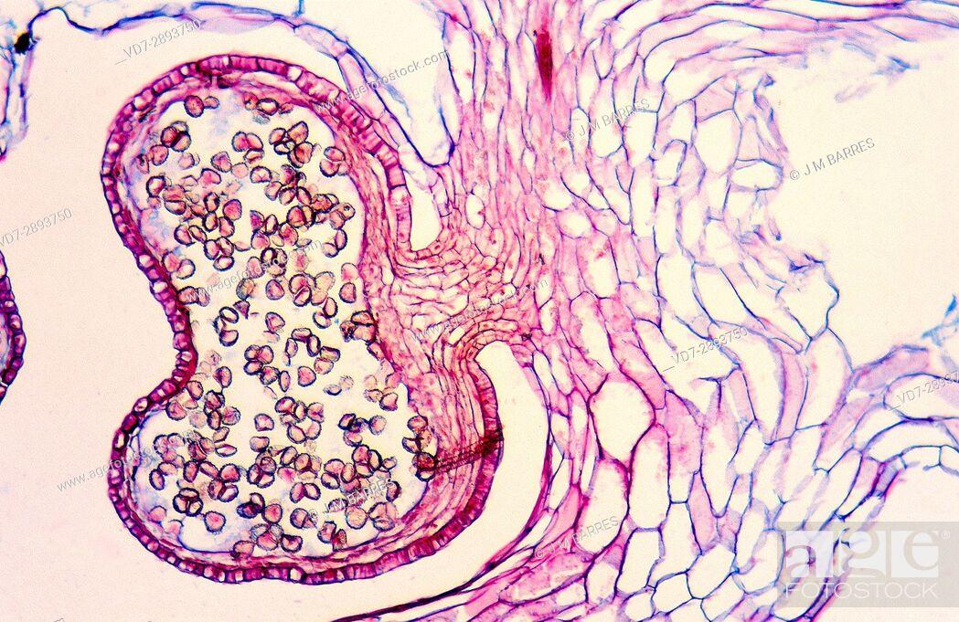 Stock Photo: Lycopodium sporangium, longitudinal section. Optical microscope, magnification X100.