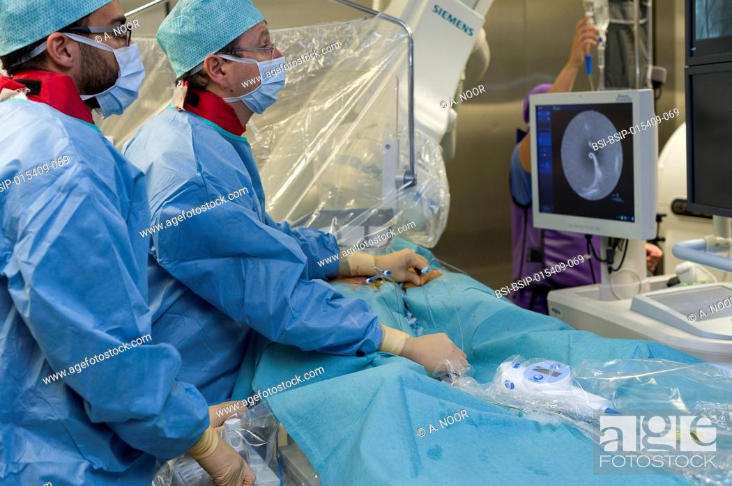 Stock Photo: Reportage in the Interventional Cardiology and Rythmology service in Saint George Clinic in Nice, France. Radiofrequency ablation of cardiac arrhythmia using.