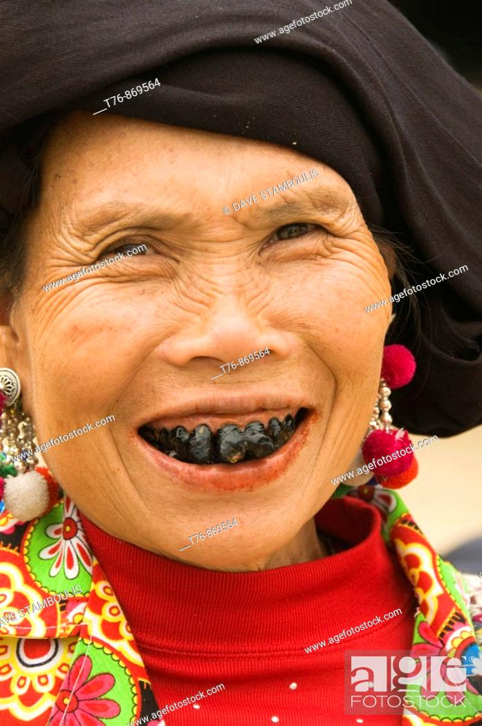 Imagen: the black teeth of a Black Lu hilltribe woman in Tam Duong Vietnam  The married Lu women color their teeth with lacquer from trees to prevent tooth decay and as.