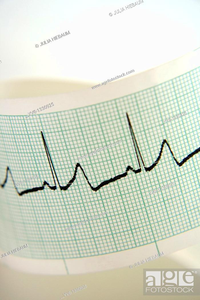 Stock Photo: EKG tracing printout.