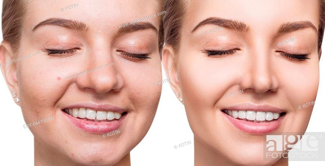 Imagen: Young woman before and after skin treatment. Over white background.
