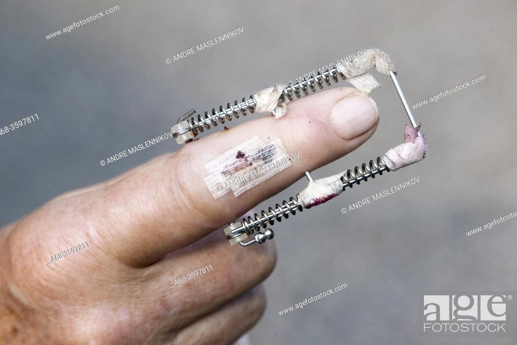 Stock Photo: Finger into splints.