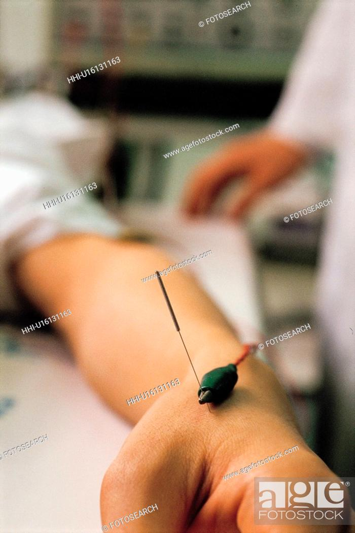 Stock Photo: traditional oriental medicine, needle, oriental medicine, alternative medicine, electric needle, acupuncture.