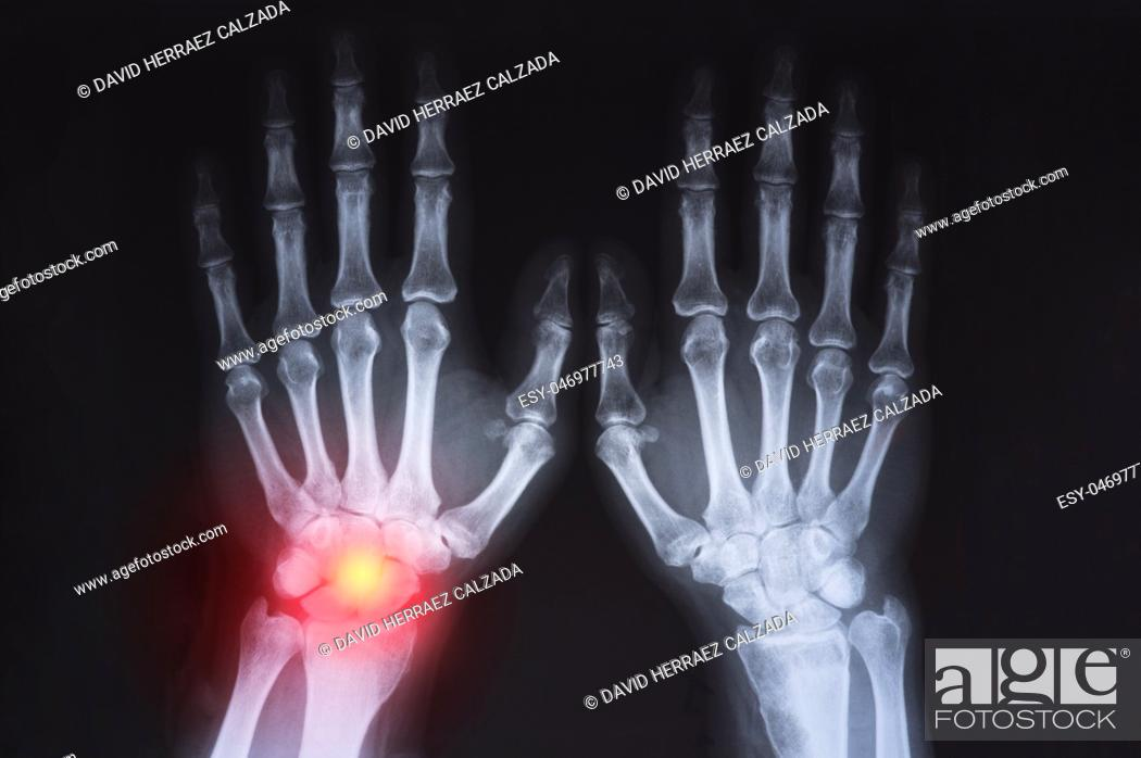 Stock Photo: Human's hand's x ray highlighted in red.