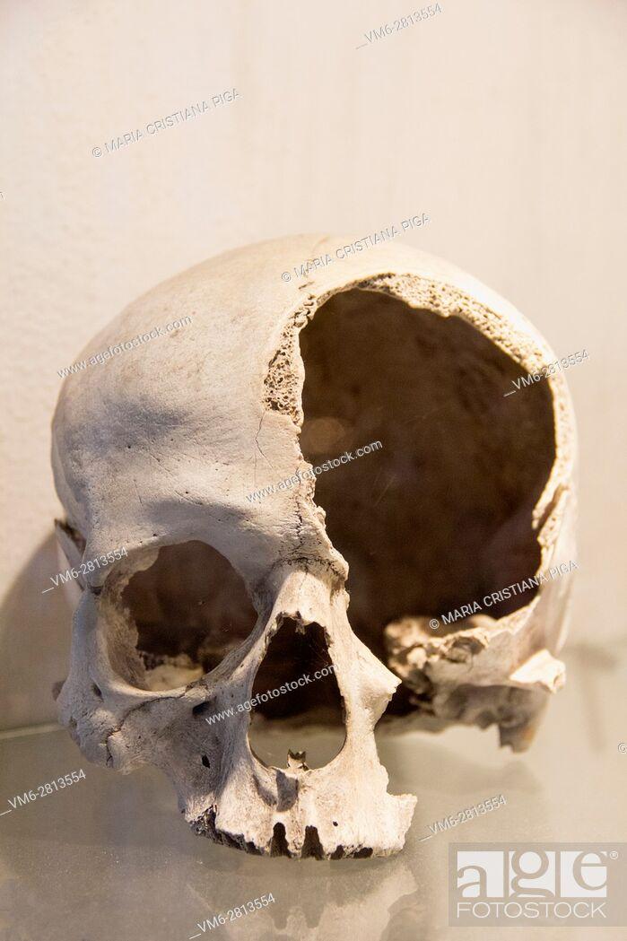 Stock Photo: Damaged human skull.